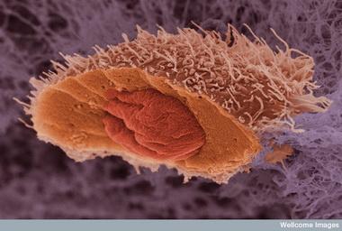 Условно патогенные микробы